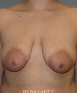 dr-sean-simon-breast-augmentation-breast-lift-b
