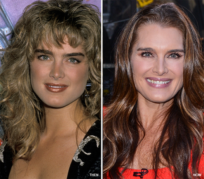 Brooke Shields Eyebrows And Makeover Sparse Eyelashes Face