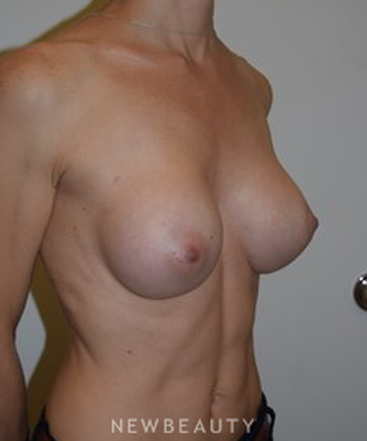 dr-david-p-rapaport-breast-augmentation-b
