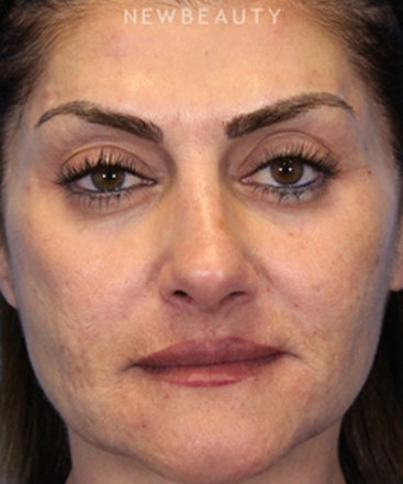 dr-ava-shamban-facial-rejuvenation-b