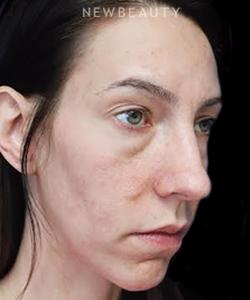 dr-joseph-russo-under-eye-rejuvenation-b