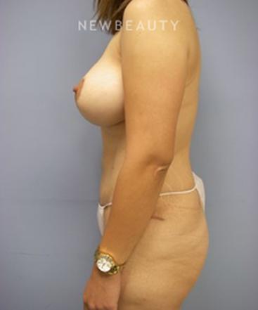 dr-linda-l-swanson-breast-lift-tummy-tuck-b
