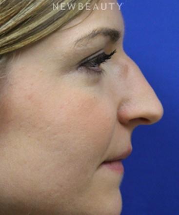 dr-jennifer-m-levine-revision-rhinoplasty-b