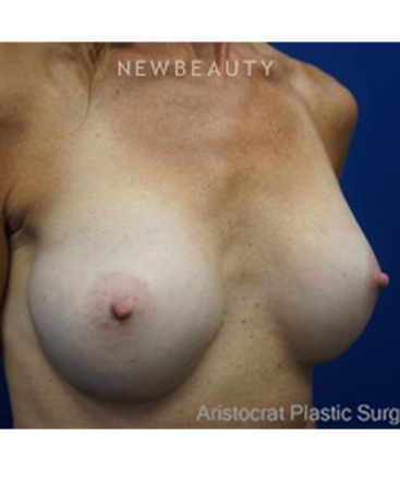 dr-kevin-tehrani-breast-augmentation-with-textured-round-silicone-implants-b