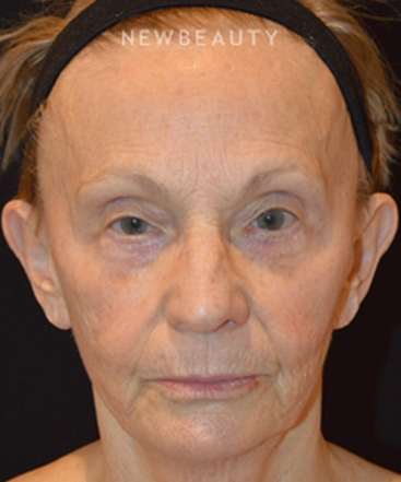 dr-cynthia-m-poulos-facelift-with-fat-transfer-b
