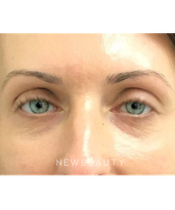 dr-janet-allenby-injectables-fillers-b