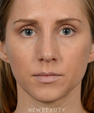 dr-jeffrey-wise-rhinoplasty-b