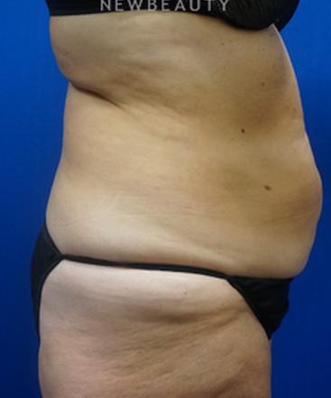 dr-niki-christopoulos-tummy-tuck-b