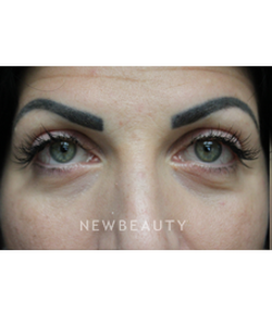 dr-joseph-russo-youthful-look-eye-ebg-b