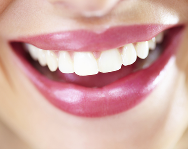 Eliminate Dark Spots For a Younger Smile