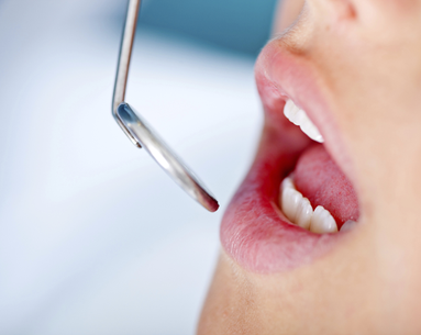 5 Most Painful Dental Procedures: How to Reduce the Pain
