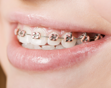 Braces: A Cure for Bad Breath?