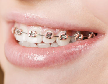 How Braces Help Bad Breath Straightening Smile