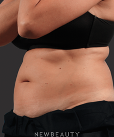 dr-marina-peredo-fat-melters-coolsculpting-b