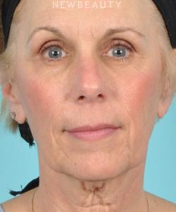 dr-bradley-bengtson-facelift-b