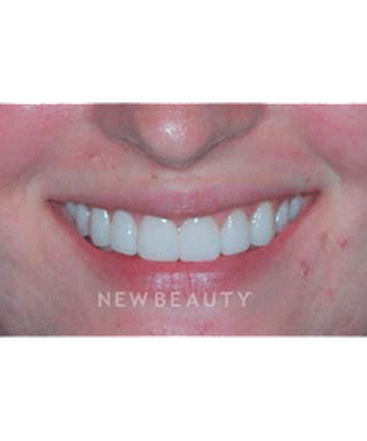 dr-guy-lewis-veneers-b