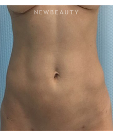 dr-kevin-tehrani-liposuction-b