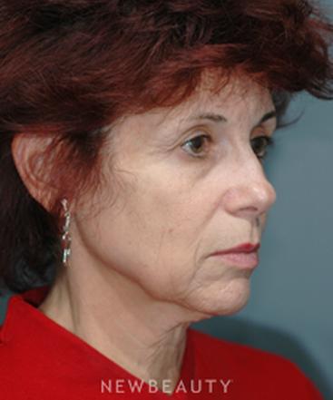 dr-james-marotta-facial-aging-b