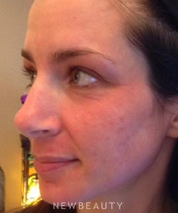 dr-ann-c-zedlitz-skin-rejuvenation-b