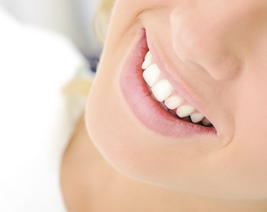 Teeth Whitening Sensitivity: Solved