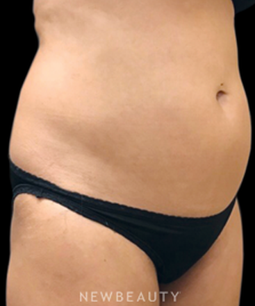 dr-janet-allenby-coolsculpting-b