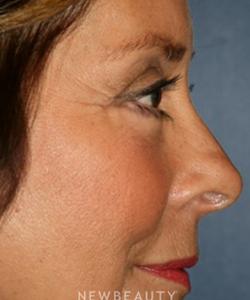 dr-kaveh-alizadeh-blepharoplasty-b