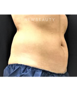 dr-ingrid-warmuth-coolsculpting-b
