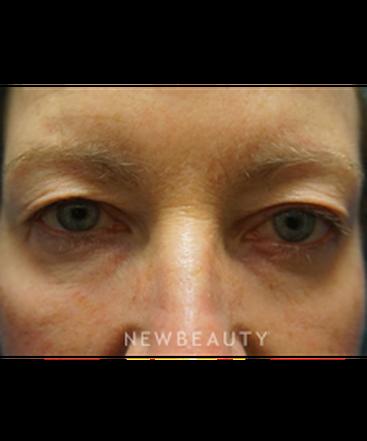 dr-niki-christopoulos-upper-blepharoplasty-b