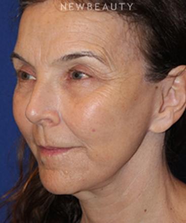 dr-dilip-madnani-facelift-necklift-b