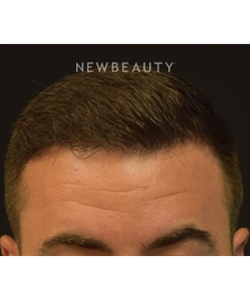 dr-jeffrey-rapaport-hair-transplant-b