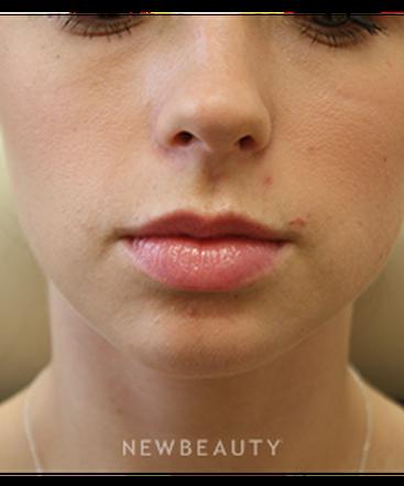dr-irene-gladstein-lip-enhancement-b