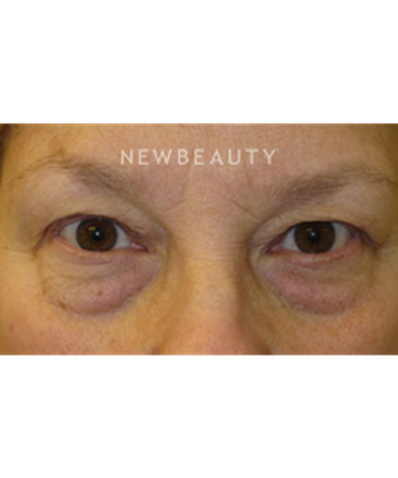 dr-stafford-broumand-blepharoplasty-b