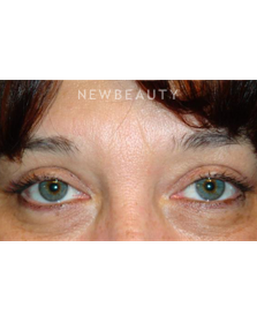 dr-baljeet-k-purewal-upper-blepharoplasty-b