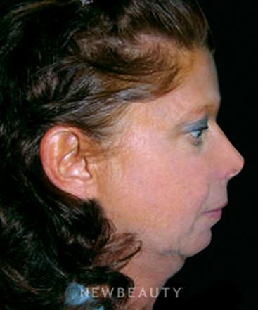 dr-thomas-hahm-facial-rejuvenation-b