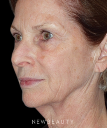 dr-min-s-ahn-lower-facelift-and-necklift-b