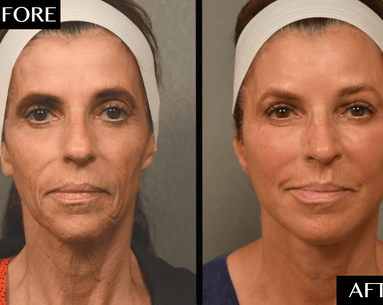 An Often-Overlooked Facial Rejuvenation Procedure Made This Woman Look 10–15 Years Younger