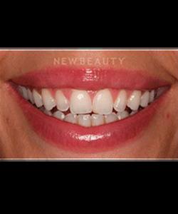 dr-laurence-rifkin-veneers-teeth-whitening-b