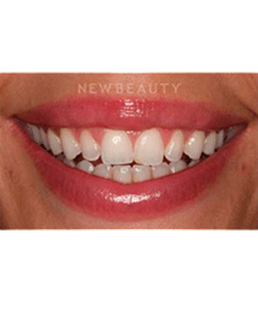 dr-laurence-rifkin-veneers-teeth-whitening-b