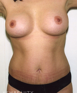 dr-david-rapaport-breast-augmentation-tummy-tuck-b