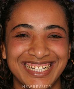 dr-sam-sadati-crowns-gum-contouring-veneers-b