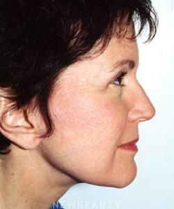 dr-david-blepharoplasty-facelift-b