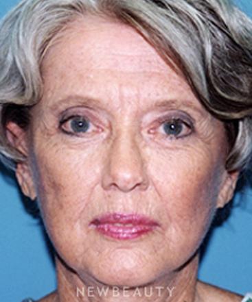 dr-david-rapaport-blepharoplasty-facelift-b