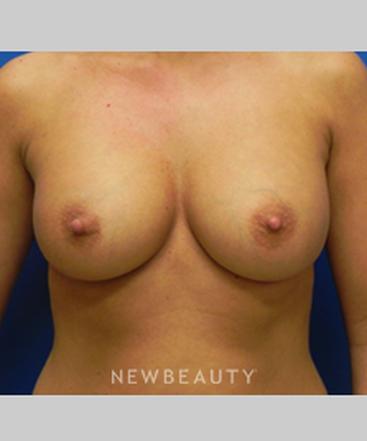 dr-sarah-mcmillan-breast-augmentation-b