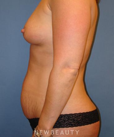 dr-sarah-mcmillan-breast-augmentation-tummy-tuck-b