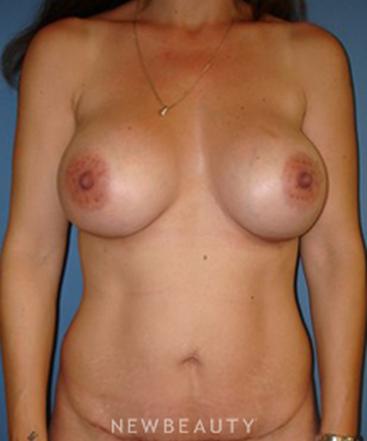 dr-sarah-mcmillan-breast-revision-tummy-tuck-b