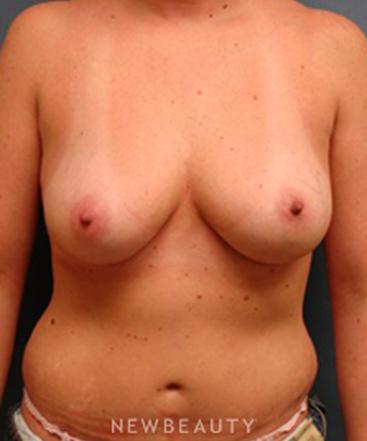 dr-sarah-mcmillan-breast-augmentation-liposuction-b