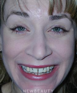 dr-guy-lewis-crowns-dental-implants-gum-contouring-b