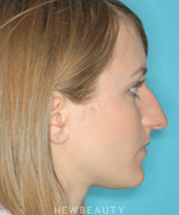 dr-david-kim-rhinoplasty-b