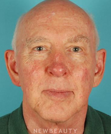 dr-david-kim-blepharoplasty-facelift-necklift-otoplasty-b