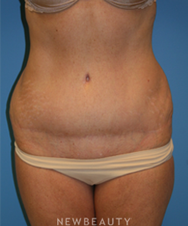 dr-christine-hamori-liposuction-skin-tightening-energy-based-b